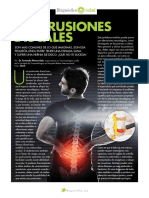 protusiones discales
