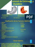 cncerdeestmagoyduodeno-151212000957