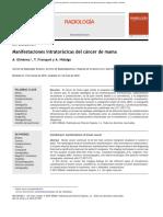 corticoides y neumonitis
