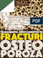 Tratamentul medicamentos in fracturi si osteoporoza