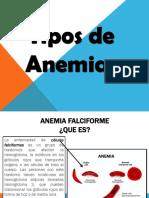 Anatomia Anemias