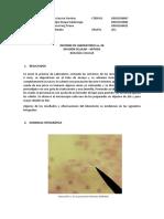 INFORME DE LABORATORIO MITOSIS EN CEBOLLA.