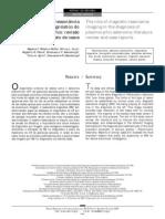 O papel da ressonância magnética no diagnóstico do adenoma pleomórfico