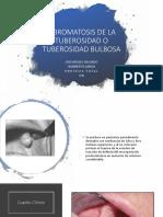 Fibromatosis de La Tuberosidad o Tuberosidad Bulbosa