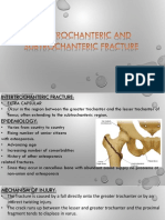 Inter and Sub Trochanteric Fracture