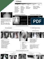 Radiografía de Toráx