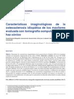 osteoesclerosis idiopatica