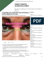 4 Remedios Sin Crema Para Ojos Hinchados y Bolsas Debajo de Los Ojos