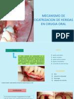 Cicatrizacion de Heridas