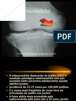 OSTEOCONDRITE dissecante do joelho