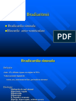 Bradiaritmii