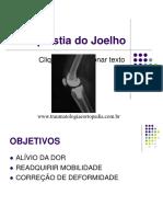 Artroplastia de Joelho