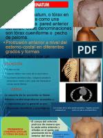 pectum carinatum