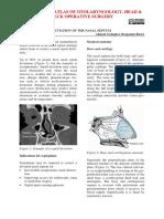 Septoplasty