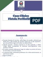 fistula perilinfatica