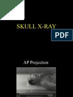 Radiologi Skull X-Ray