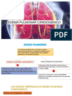 Edema Pulmonar Cardiogénico