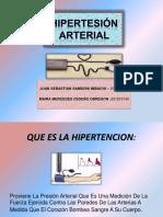 Hipertesión Arterial