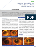 A Case of Bilateral Corneal Perforation in a Patient with Severe Dry Eye in India.pdf