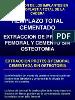 Extraccion de Protesis Femoral Cementada Sin Osteotomia