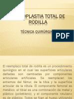 Artroplastia Total de Rodilla Tecnica Quirurgica