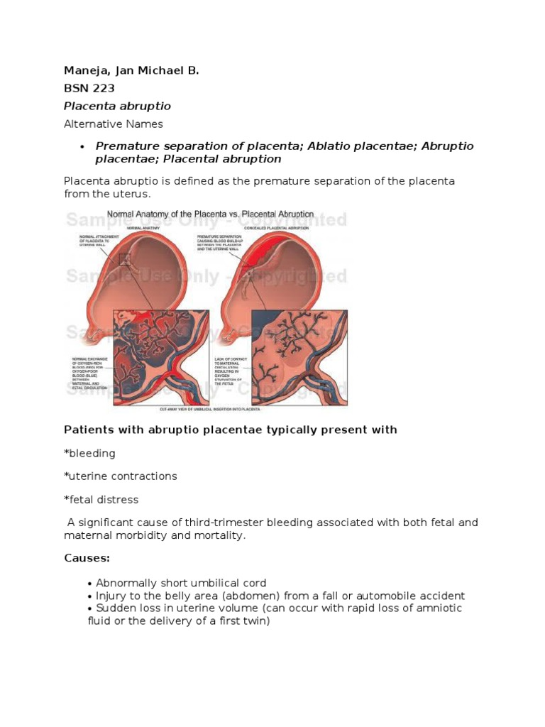 Anatomy Of The Placenta Choice Image - human body anatomy