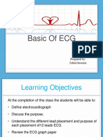 Basic of ECG 16