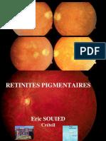 Retinites Pigmentaires