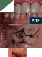 Implantes_Presentación1.pptx  -  Autorecuperado