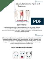 Dental Caries Causes Symptoms Types Treatment