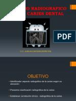 Caries Dental