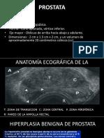 Prostata Patologia