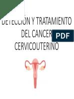 Detección y Tratamiento Del Cancer Cervicouterino