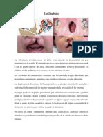 Las Disglosias