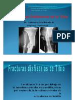 Fracturasdiafisiariasdelatibiapptx 120618205755 Phpapp02 Convertido