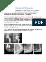 Resumen 07-11-17 Osificación heterotropica