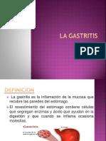 La Gastritis