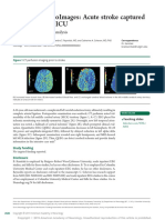 Acute stroke captured__on EEG in the ICU.pdf