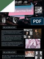 Dilaceracion