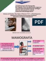 Microcalcificaciones en Mama.grecia