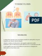 EXPOSICION ULTIMO.pptx