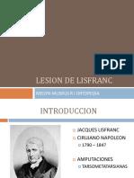 Articulacion de Lisfranc