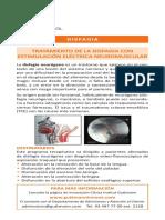 Estimulacion disfagia