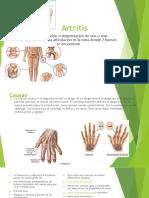 Artritis (2).pdf