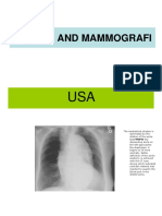 Thorax and Mammografi