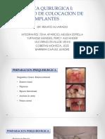Tecnica Quirurgica Implanto