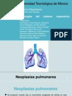 "Equipo 4 ""Neoplasias Pulmonares"""