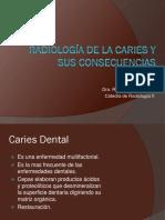 Radiología de la Caries y sus consecuencias.pdf