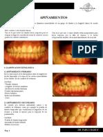 1.APIÑAMIENTOS.pdf