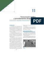 EB04-11 toracoscopia.pdf